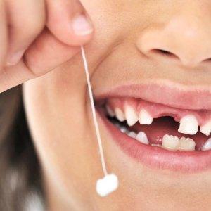 Быстро и безболезненно удаляем молочный зуб в домашних условиях