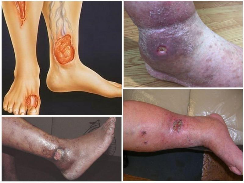 Чем мазать трофические язвы на ногах