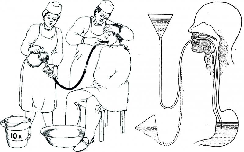 При отравлении чем промыть желудок